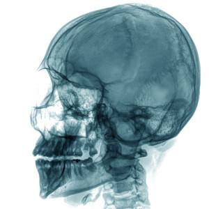 X-ray of a human skull